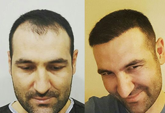 Turkey A Best Place For Hair Transplant Treatments